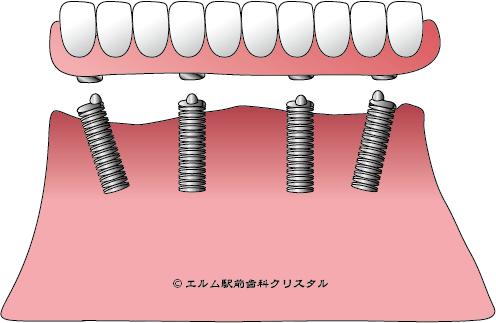 オール・オン・フォー・インプラント