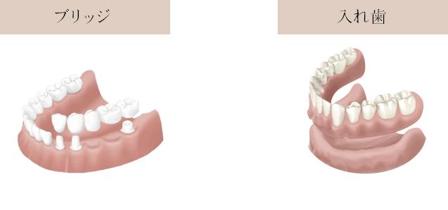ブリッジ入れ歯-1