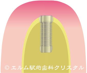 インプラント手術方法