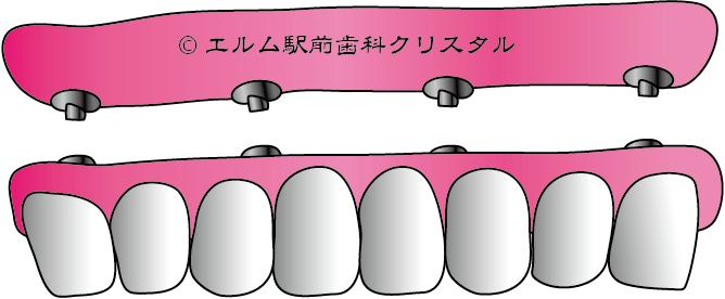 オール・オン・フォー(オールオン4)[エルム駅前歯科クリスタル旭川のインプラント治療はお任せください]