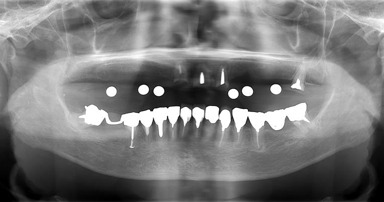 上顎フル(オール・オン・7) インプラントオペ[No.10][エルム駅前歯科クリスタル旭川のインプラント治療はお任せください]