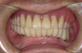 下顎オール・オン・シックス[No.7][エルム駅前歯科クリスタル旭川のインプラント治療はお任せください]