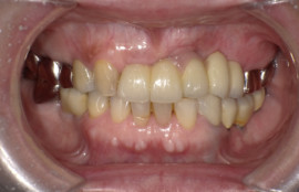上顎前歯インプラント、下顎奥歯インプラント[No.21]