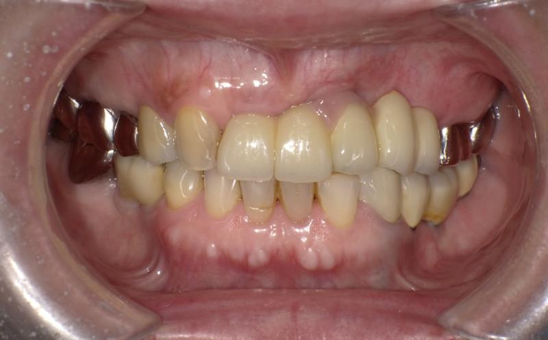 上顎前歯インプラント、下顎奥歯インプラント[No.21][エルム駅前歯科クリスタル旭川のインプラント治療はお任せください]