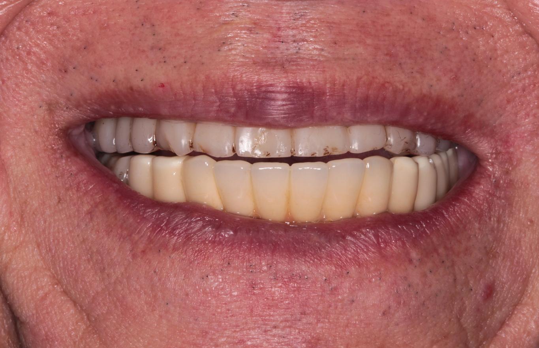 下顎インプラント ファイナルセット[No.23][エルム駅前歯科クリスタル旭川のインプラント治療はお任せください]