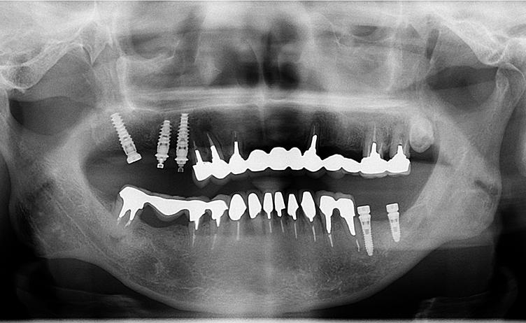 上顎3本インプラント後、下顎2本インプラント。その後、下顎ブリッジをインプラント[No.19][エルム駅前歯科クリスタル旭川のインプラント治療はお任せください]