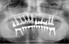 上顎7本、下顎4本インプラント手術[No.14]