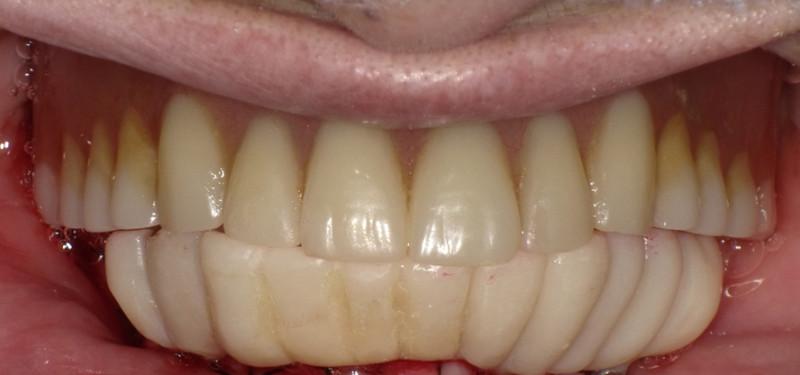 下顎オールオン4[エルム駅前歯科クリスタル旭川のインプラント治療はお任せください]