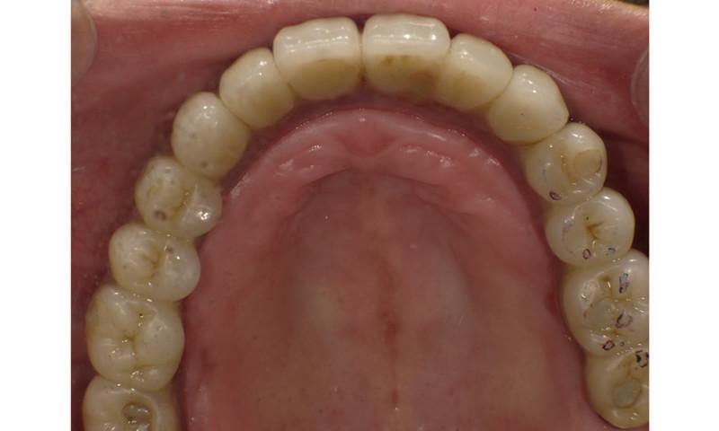 上顎8本、下顎4本インプラント[エルム駅前歯科クリスタル旭川のインプラント治療はお任せください]